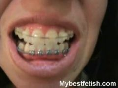Taut darksome suit and tooth brushing with braces